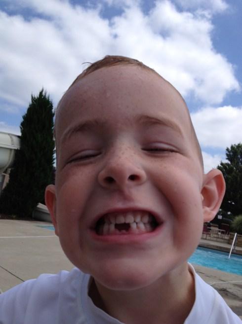 Mack has lost two teeth this summer!