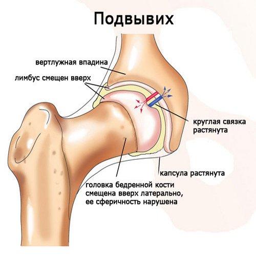 közös gyógymód 911 artrózis szó jelentése