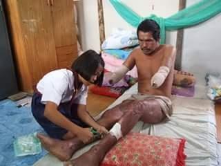 สาวน้อยยอดกตัญญู เลี้ยงพ่อพิการแขนขาด-เป็นแผลเน่าทั้งตัว แถมยังไม่ทิ้งการเรียนอีกด้วย