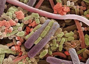 https://i0.wp.com/krugozors.ru/wp-content/uploads/2012/07/bakterii-na-jazyke-2.jpg