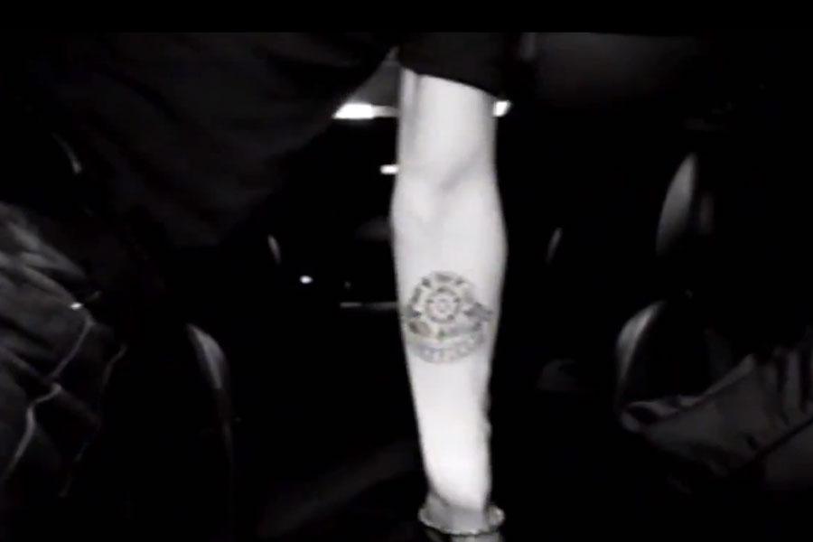 Alex Turner Tattoo Removal
