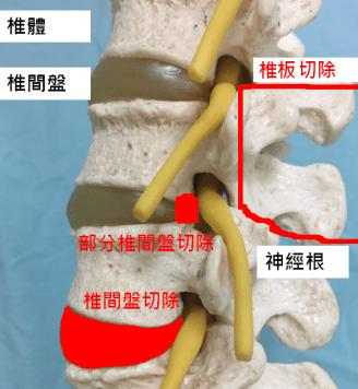 常見手術方式 – 脊椎手術照護網站