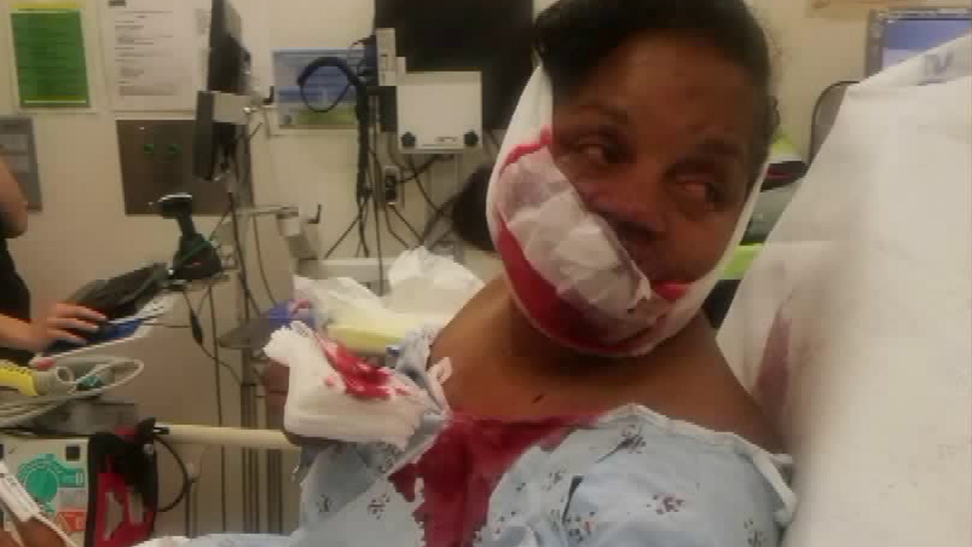 Darlecia D'Andrade is shown in a photo she provided to KTLA after she was injured in a random attack in Carson on June 16, 2018.