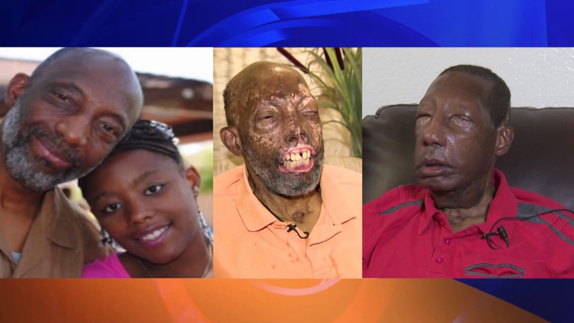 Robert Chelsea is seen in photos before and after a crash that caused extensive burns to his face, and after a facial transplant. (Credit: KTLA)