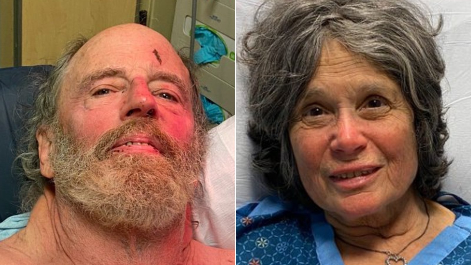 Ian Irwin, left, and Carol Kiparsky are seen recovering in a hospital in a photo released Feb. 23, 2020, by the Marin County Sheriff's Office.