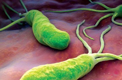 Резултат слика за helicobacter pylori