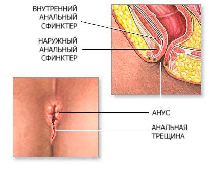 Anysniny_seks000001.