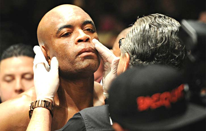 Stitch checks over MMA Legend Anderson Silva after round one