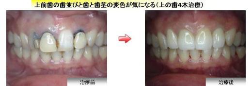 ジルコニア症例1 上前歯の歯並びと歯と歯茎の変色が気になる(上の歯4本治療)