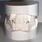 くりた歯科 歯型 インビザライン 掛川 矯正歯科 掛川
