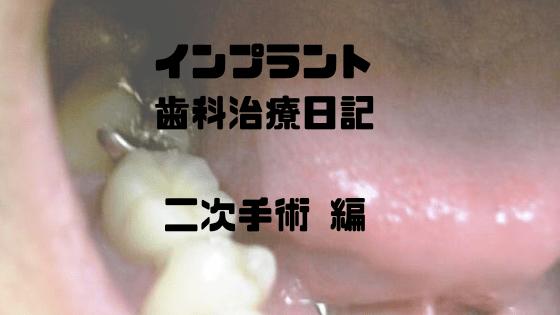 インプラント歯科治療日記 二次手術