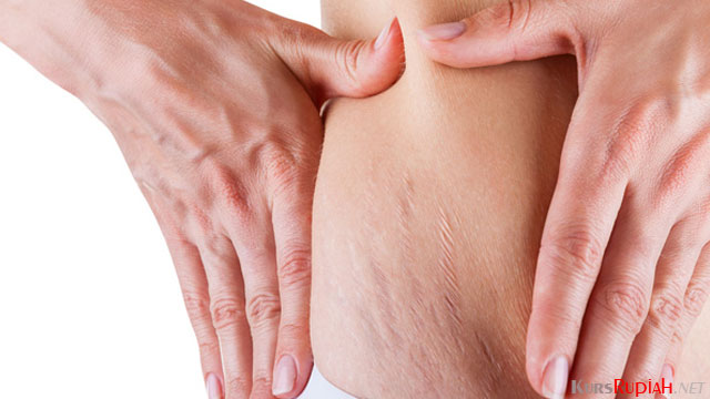 Stretch Mark - www.thebeautyinsiders.com