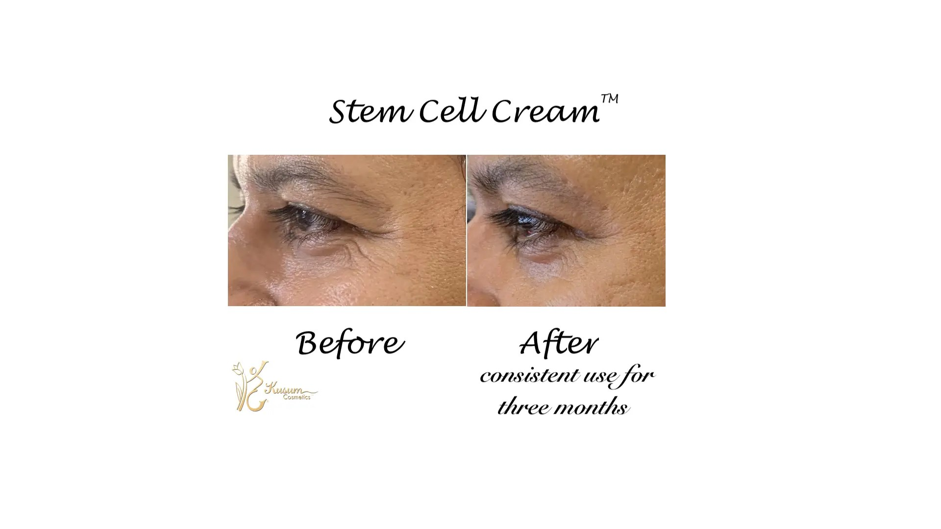 Stem Cell Cream Results