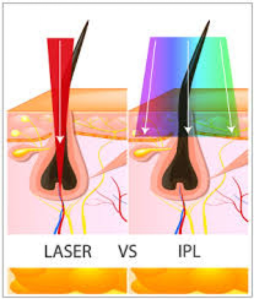 hight resolution of laser hair removal acne scar treatment laser hair removal cystic acne diagram diagram of acne scar