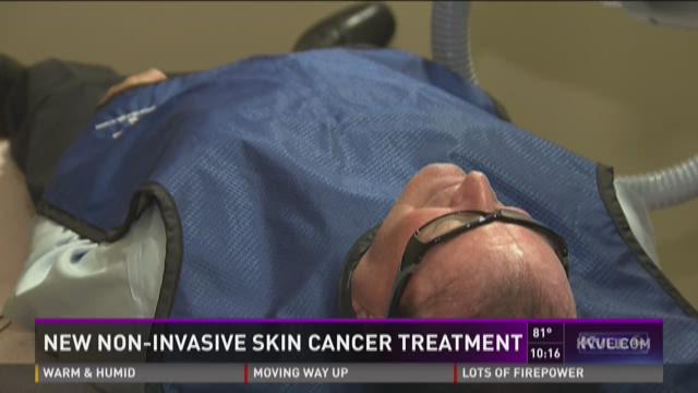 New Noninvasive Skin Cancer Treatment  Kvuem
