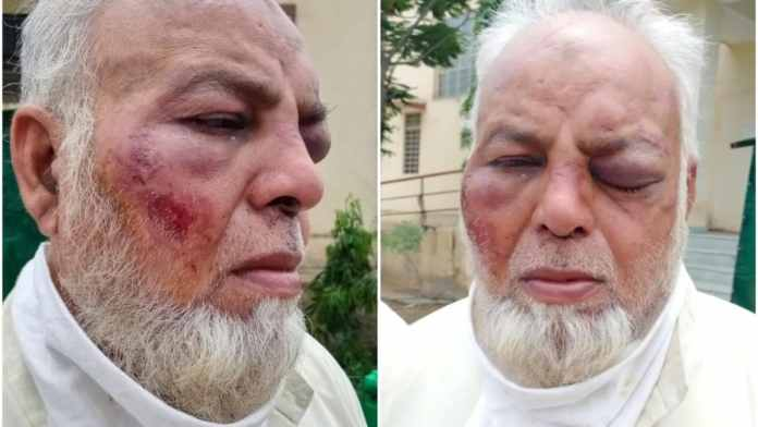 Muslim auto driver thrashed for not saying 'Jai Shri Ram' in Rajasthan