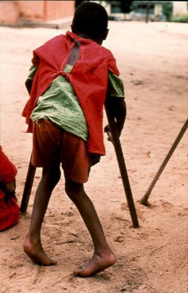 Boy suffering from konzo