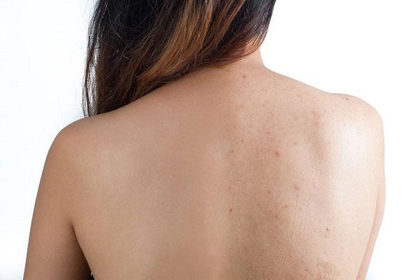 10 Cách trị mụn lưng hiệu quả tại nhà bằng nguyên liệu tự nhiên