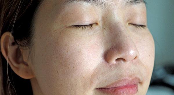 Nám da là gì và nguyên nhân hình thành