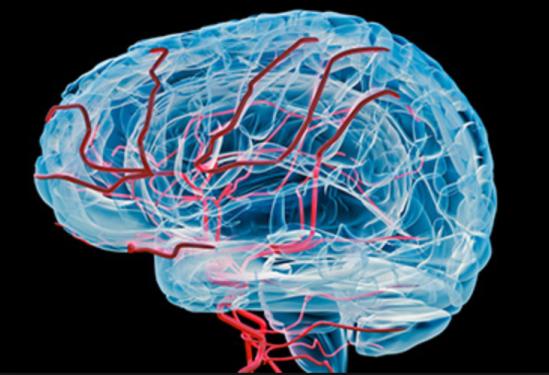 vascular dementia brain