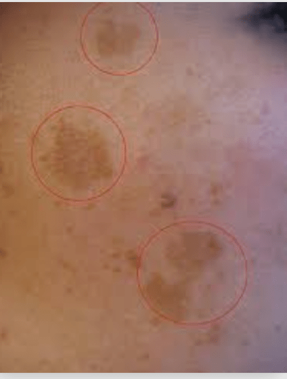 Omage of hyperpigmentation on body