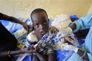 A wounded child undergoes medical treatment at the general military hospital in the capital Juba December 28, 2013. REUTERS/James Akena