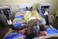 A wounded South Sudan military personnel lies in bed as he undergoes medical treatment at the general military hospital in the capital Juba December 28, 2013. REUTERS/James Akena