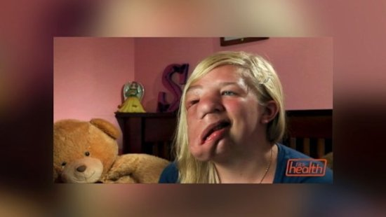 Teen With Half a Face Stands Up to Her Bullies (ABC News)