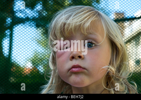 4 Year Old Girl With A Swollen Eye From Wasp S Sting Stock Photo