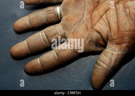 Ichthyosis vulgaris Stock Photo: 1684845 - Alamy