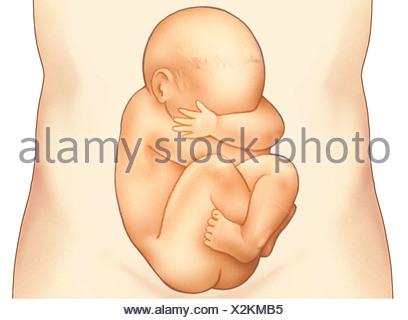 Foetus en siège dans le ventre de maman Photo Stock - Alamy