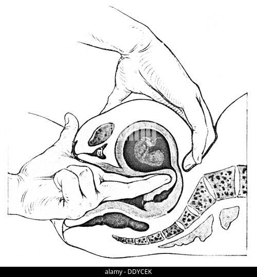 Iliopsoas Sign Appendicitis