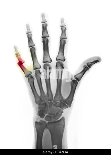 Bone Hand Stockfotos  Bone Hand Bilder  Seite 3  Alamy