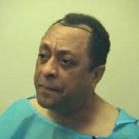 Michael miguel desde la clínica haciéndose un trasplante de pelo