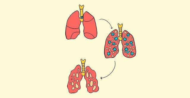 Células inmunes a Covid-19 ocasionan inflamación pulmonar
