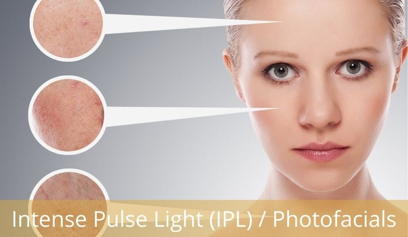 Intense Pulse Light (IPL) / Photofacials