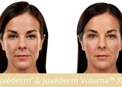 Juvederm® & Juvederm Voluma™ XC