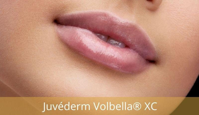 Juvederm Volbella® XC Lip Injection Gel