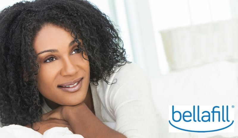 Bellafil® Filler for Smile Lines and Acne Scars