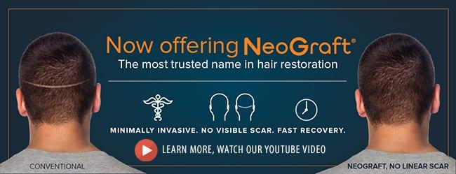 La Bella Vita Medi Spa in Rocklin now offers NeoGraft hair transplants