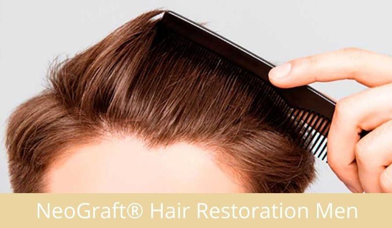 NeoGraft®Hair Restoration for Men