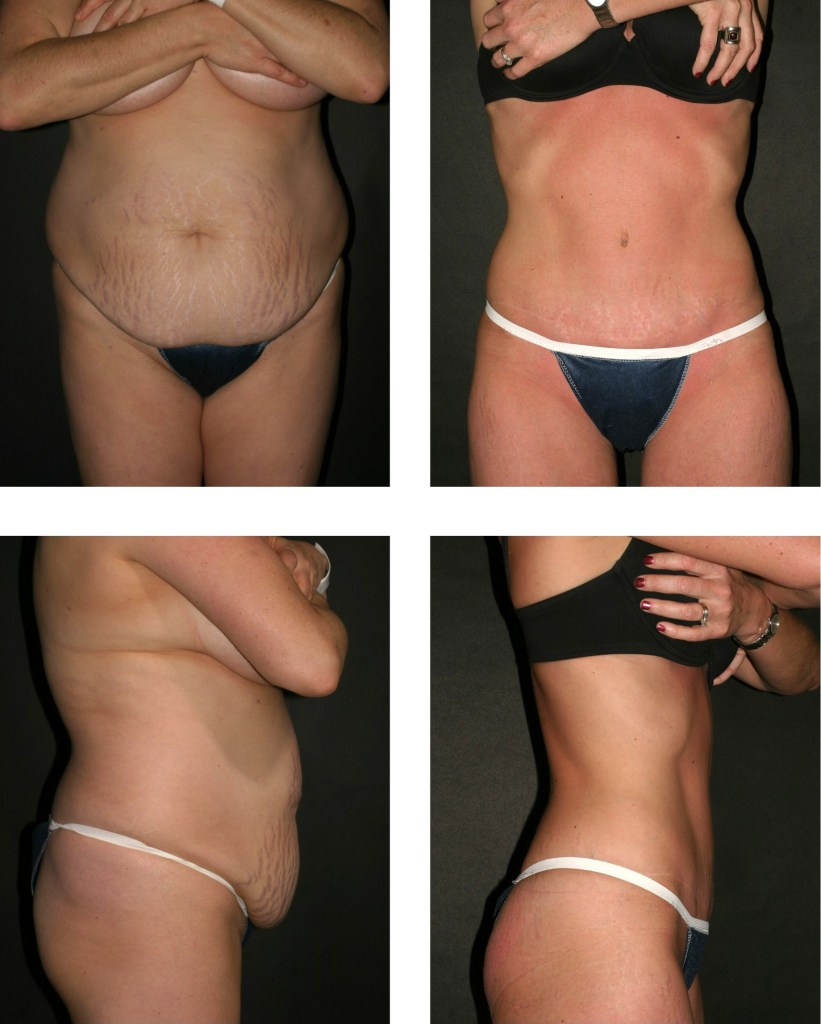 Mommy Makeover Abdominoplasty Wilmington NC