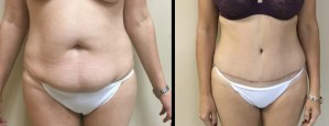 Abdominoplasty Surgery Wilmington NC
