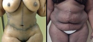 Abdominoplasty Surgery Wilmington NC