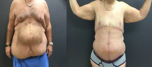 body contouring adominoplasty