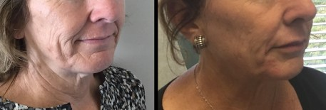 juvederm before and after - lips and cheeks