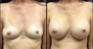56 yrs old Saline Breast Augmentation