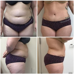 Abdominoplasty (skin only) 35 years old