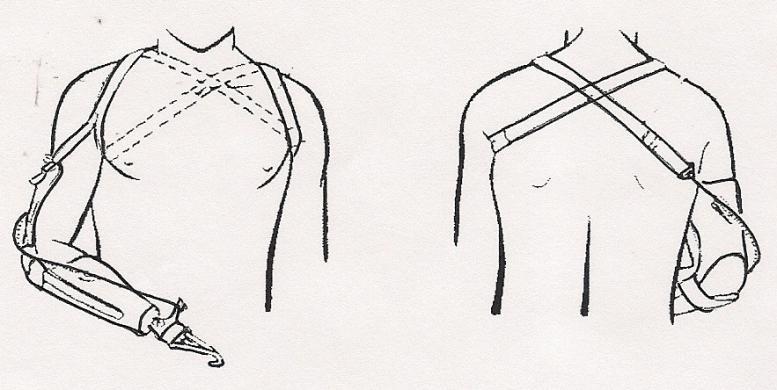 Les Méthodes de prothèses