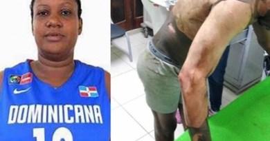 Una miembro de la selección nacional de baloncesto quema su marido en un arranque de celos